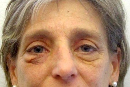 complicazioni blefaroplastica 2
