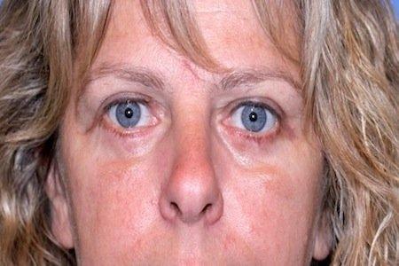 complicazioni blefaroplastica 4