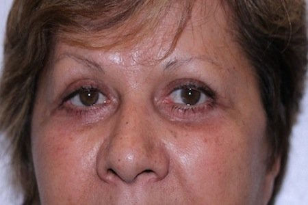 complicazioni blefaroplastica 6
