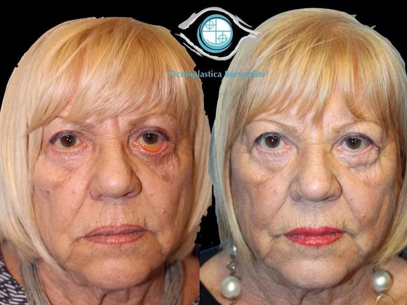 Blepharoplasty complications 2
