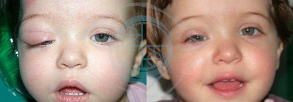 ptosi pediatrica prima e dopo