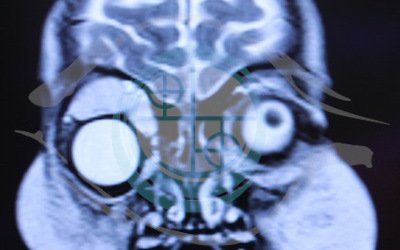 Caso 1. malformazione vascolare. risonanza magnetica pre (RM)