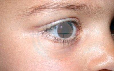 Caso 4. cisti dermoide. vista di lato cicatrice invisibile