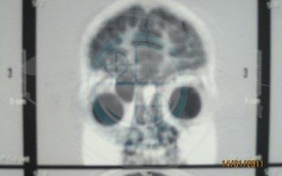 Caso 5. cisti dermoide. Risonanza mostra reali dimensioni e profondità cisti orbitaria occhio destro