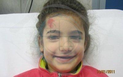 Caso 5. cisti dermoide. preoperatorio_gonfiore palpebra superiore occhio destro vicino al naso