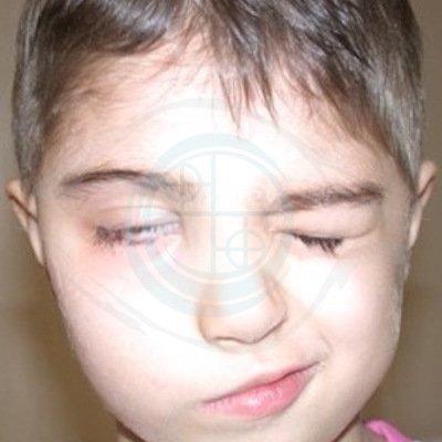 Paralisi del faciale nel Bambino. foto 2 - pre