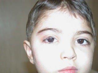 Paralisi del faciale nel Bambino