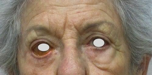 Ectropion cicatriziale dopo Blefaroplastica