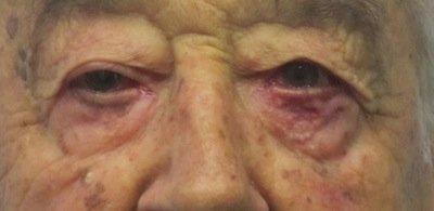 ectropion in paziente anziano - dopo