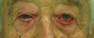 ectropion in paziente anziano - prima