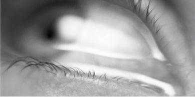 Ostruzioni Vie Lacrimali