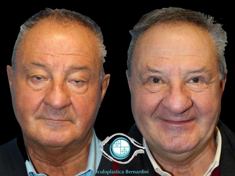Estremamente Ptosi Palpebrale - Cause e Rimedi - Dr. Francesco Bernardini YU47