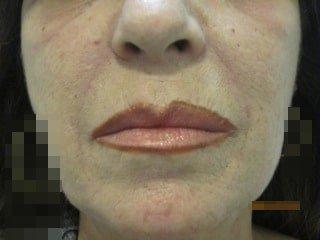 Filler rughe naso-geniene dopo 7 giorni