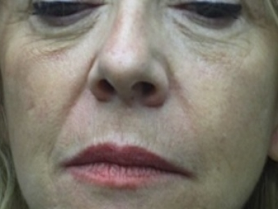 Pieghe nasogeniene: dopo