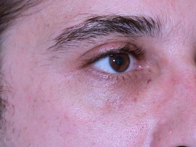 Valle delle lacrime: subito dopo trattamento