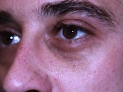 Filler Restylane per correzione occhiaia prima