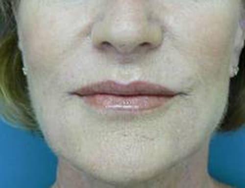 4. Filler labbra Juvederm dopo