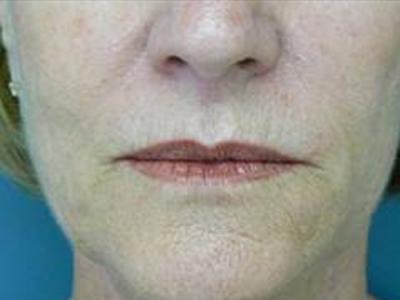 3. Fillers labbra Juvederm prima