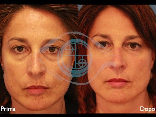 Fillers – Acido Ialuronico 1