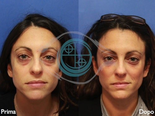 Fillers – Acido Ialuronico 2