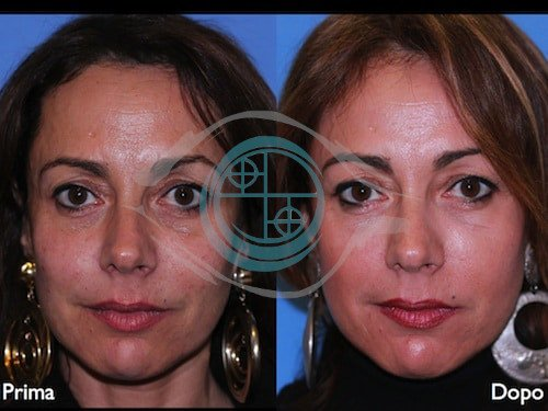 Fillers – Acido Ialuronico 3