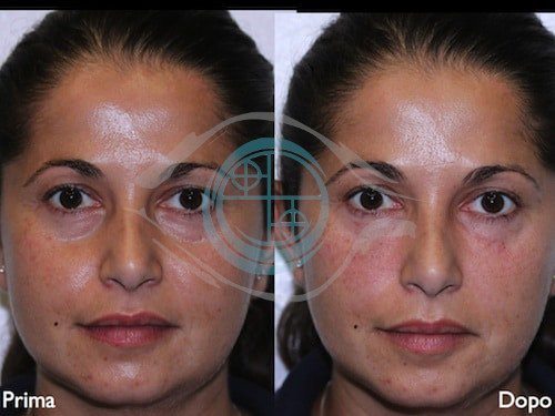 Fillers – Acido Ialuronico 4