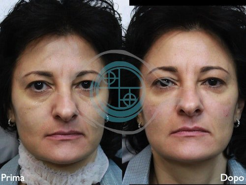 Fillers – Acido Ialuronico 5