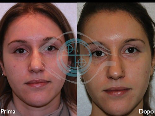 Fillers – Acido Ialuronico 7
