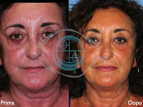 Fillers – Acido Ialuronico 8