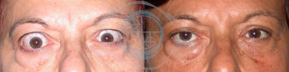 Orbitopatia Tiroidea Foto 1