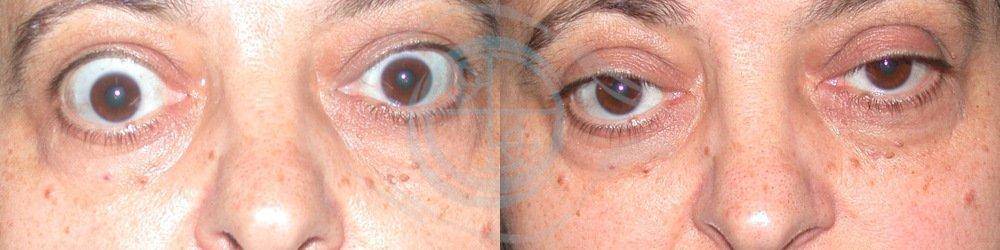 Orbitopatia Tiroidea Foto 3