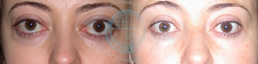 Orbitopatia Tiroidea Foto 9