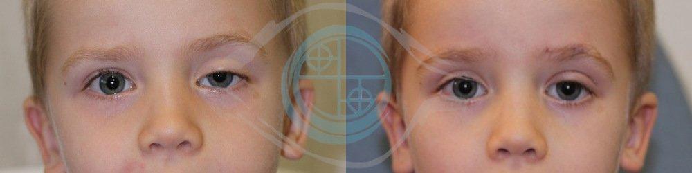 ptosi palpebrale – galleria prima e dopo