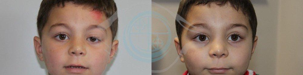 corregge la ptosi palpebrale congenita prima e dopo