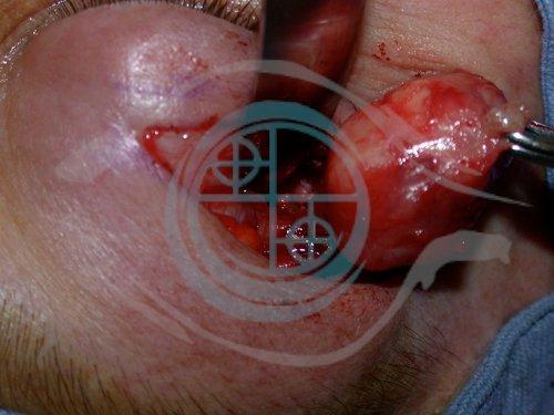 Tumore Ghiandola Lacrimale 2