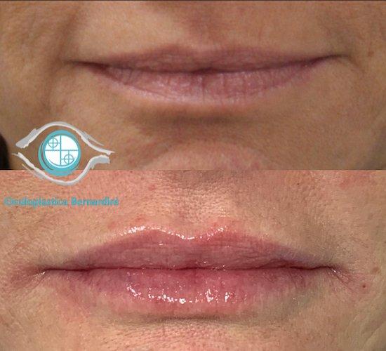 aumento labbra bernardini