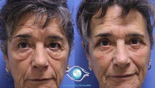 lower blepharoplasty 231219 francesco bernardini 1